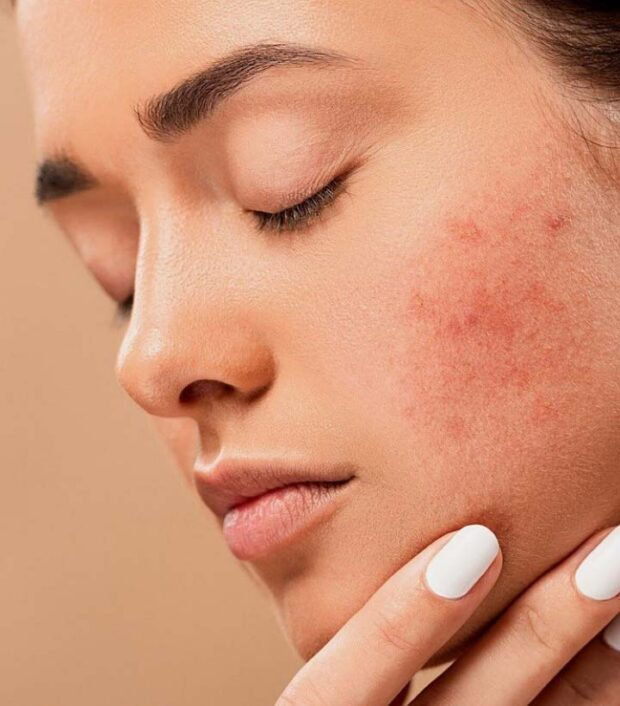 Dermabrasion Vs Microdermabrasion: Benefits, Care and Side Effects